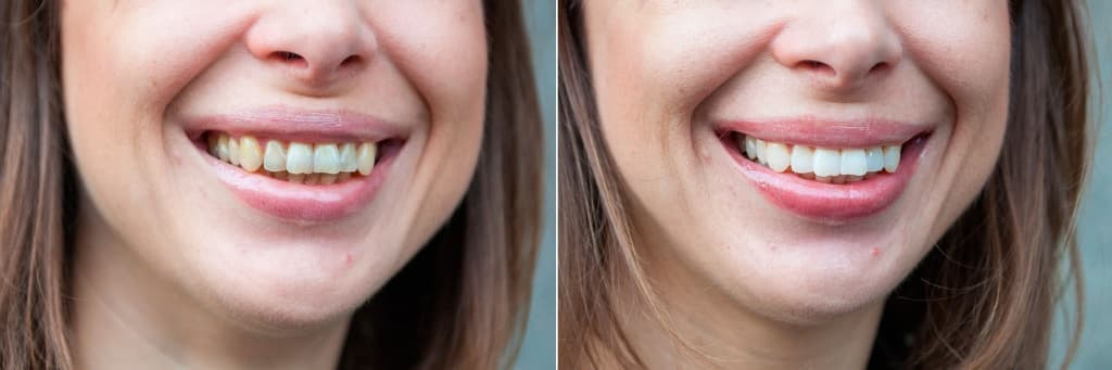 natalia-teeth-before-and-after-philips-zoom.jpg