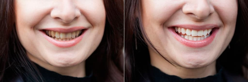 dina-teeth-before-and-after.jpg